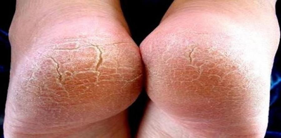 Iata cum poti sa faci cel mai bun remediu pentru calcaiele crapate si pielea uscata