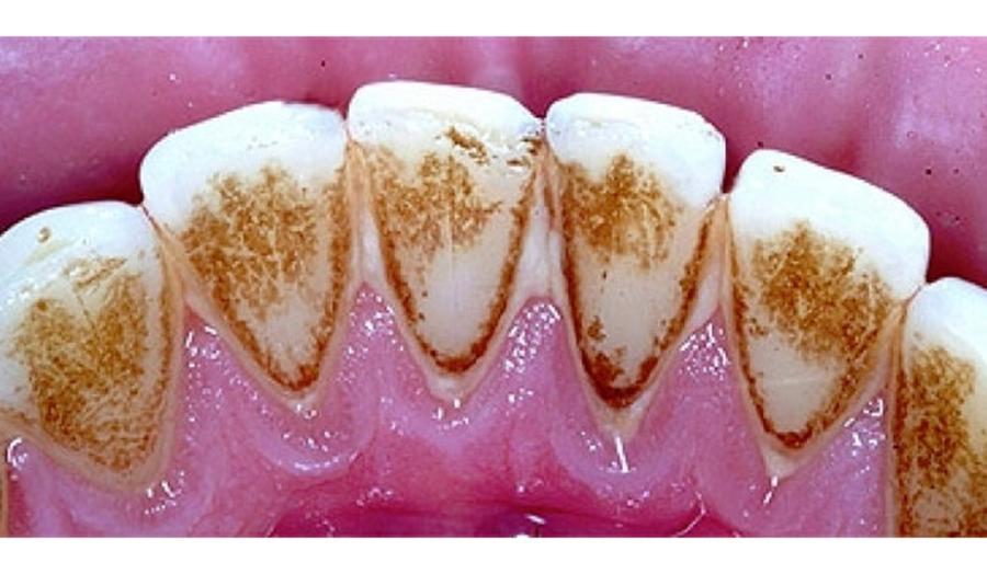 Soluția super-eficientă care îți curăță dinții! Scapa de tartru și de carii la tine acasă.
